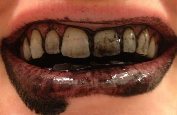 aktivni ugalj za izbeljivanje zuba